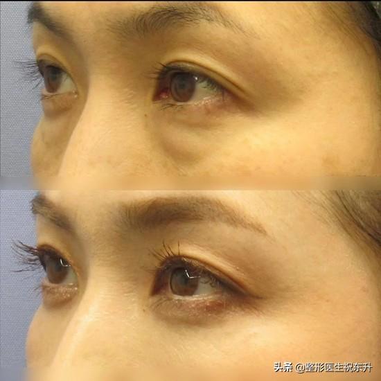 眼袋手术后多久能恢复正常?听听医生怎么说