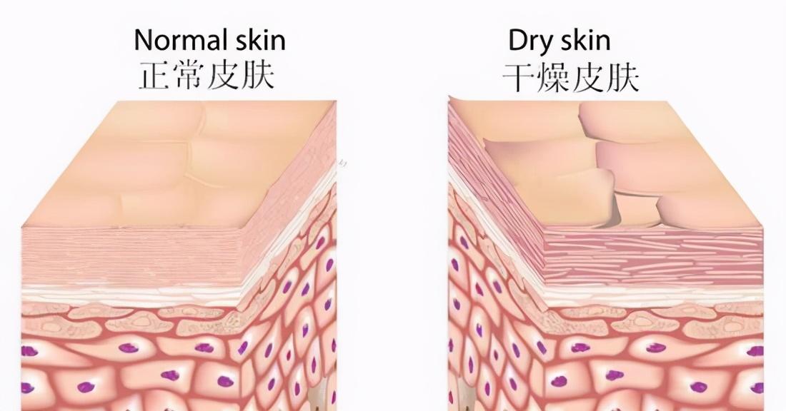 以下这两个换季肌肤问题该这样解决