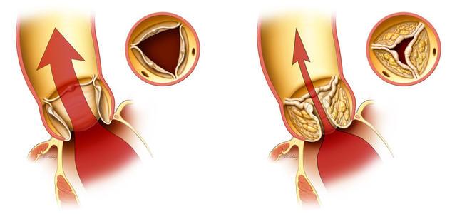 发生了主动脉瓣反流会怎么样?