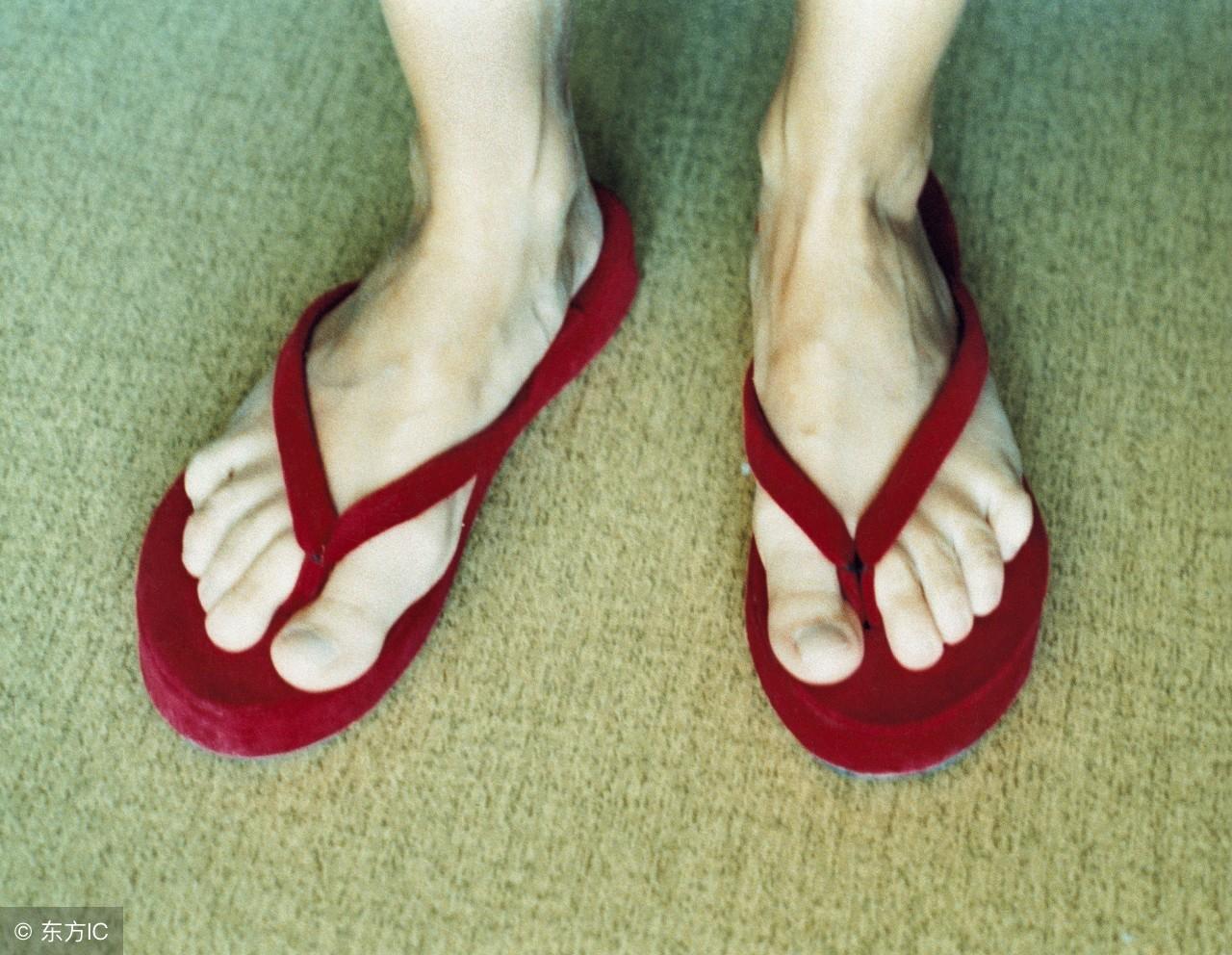 脚气病有什么症状?这三种类型的脚气病要学会区分