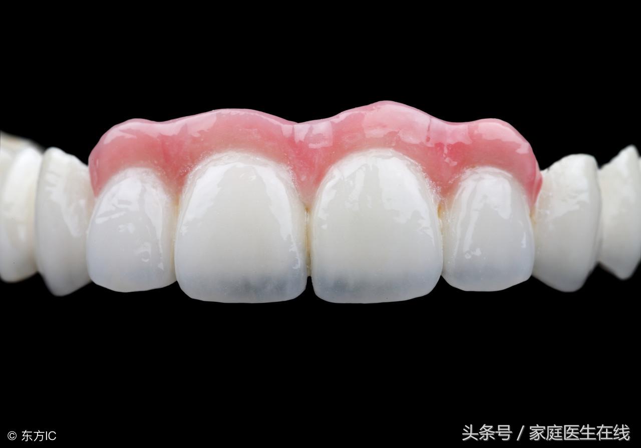 缺牙后有这三种修复方式,但适用人群各不同