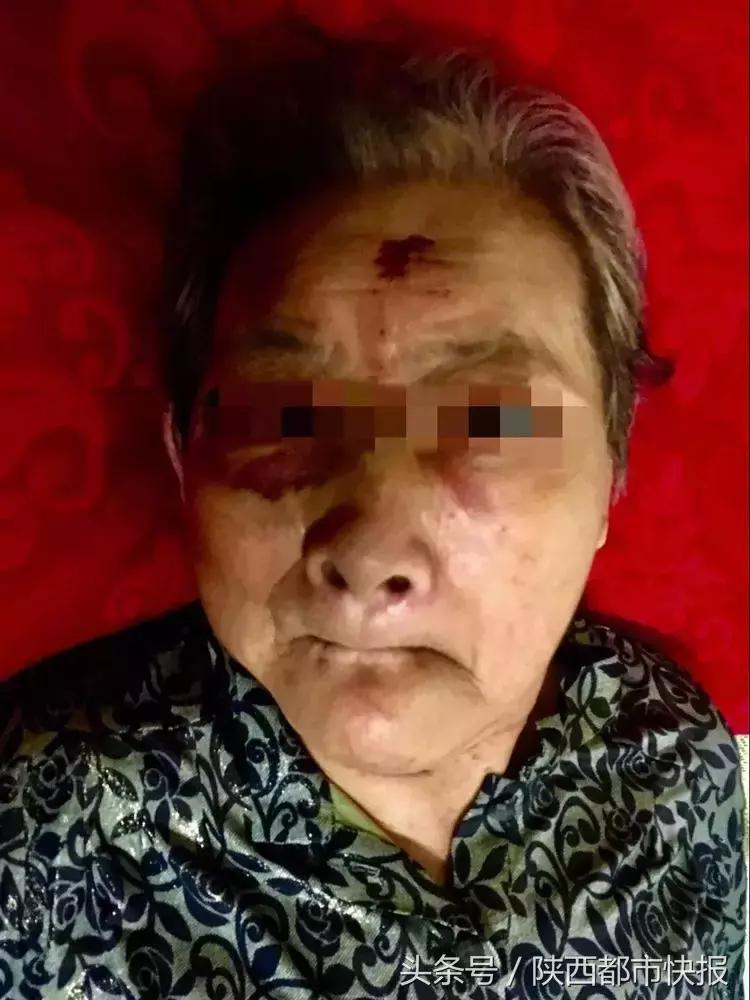 令人发指!儿女花5000元请保姆照顾86岁老母亲,老人竟被殴打骨折