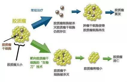 胶质瘤分为几种,如何治疗?