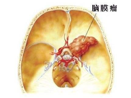 脑膜瘤伽马刀治疗有效吗?