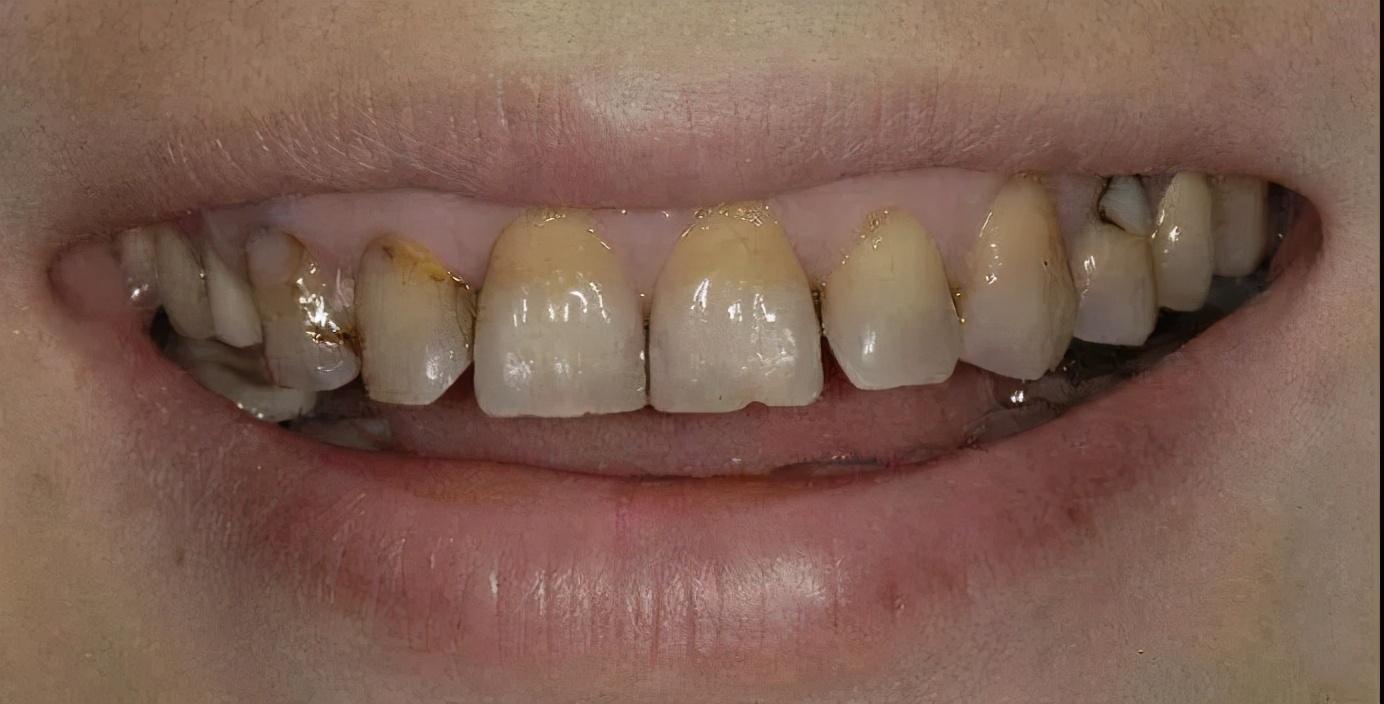 牙齿为什么越来越黄?常见的三种美白方式了解一下