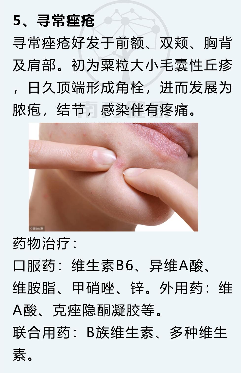 最全8大皮肤病对策、12种外用药宝典! 皮肤保养 第6张