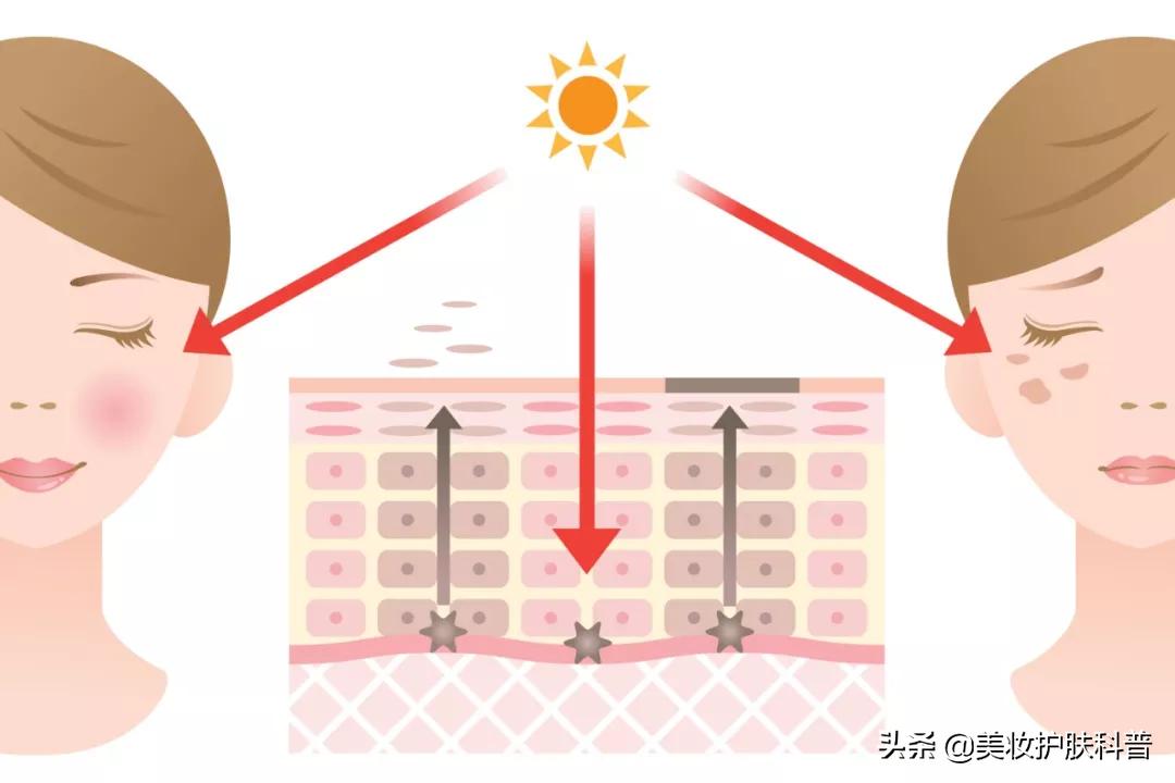 三月不防晒,五月斑上来,如何预防和治疗日晒斑 皮肤保养 第2张