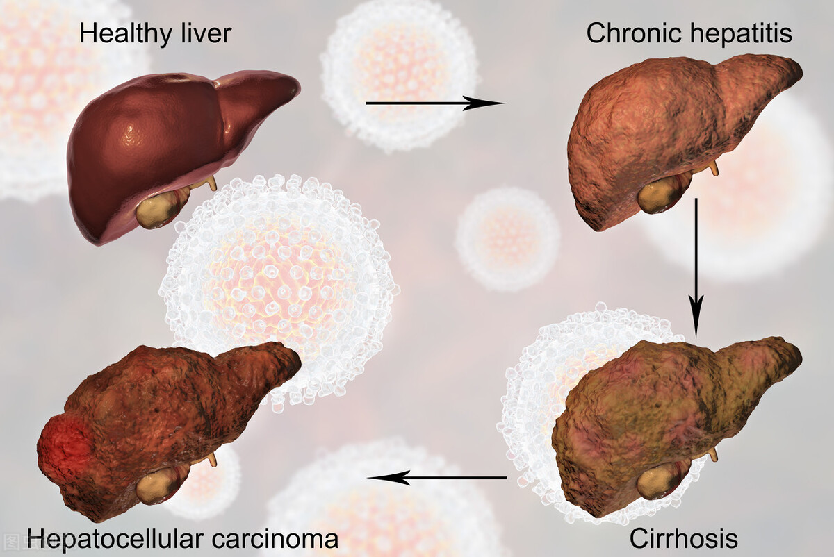 PLoS Genet:选择性抑制基因MAGEA3有望阻止肝细胞癌生长