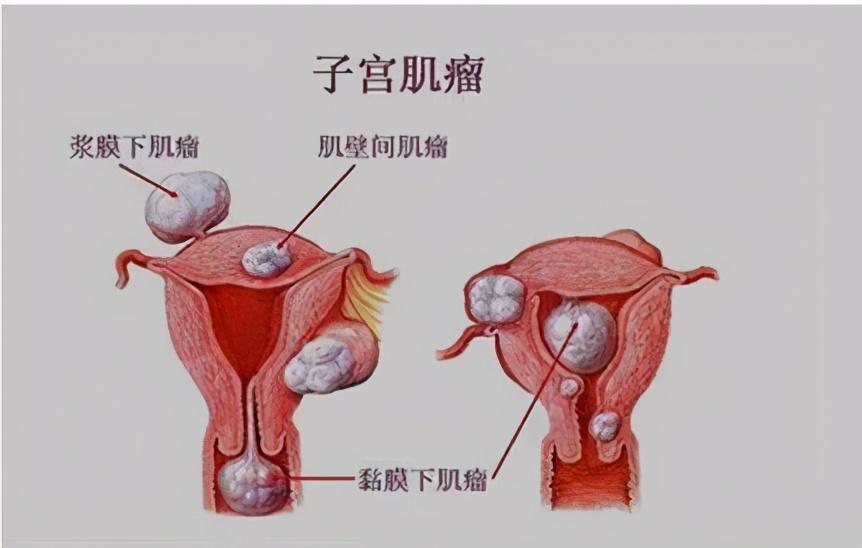 月经多,经期长,原来是子宫肌瘤惹的祸