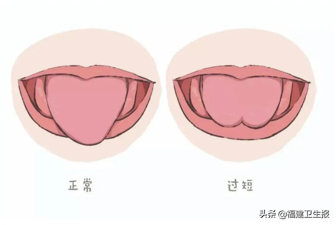 福州5岁男童被剪4次舌系带!多少中国孩子毫无必要地挨了一刀?