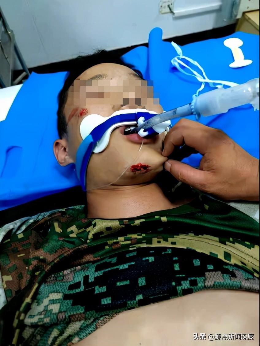 山东一15岁新生入学报到22天后死亡,学校称系校园内晕倒,家人发现身上有伤怀疑生前遭殴打,警方已介入调查