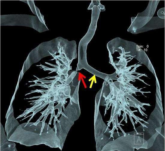 我们该如何辨别咳嗽?