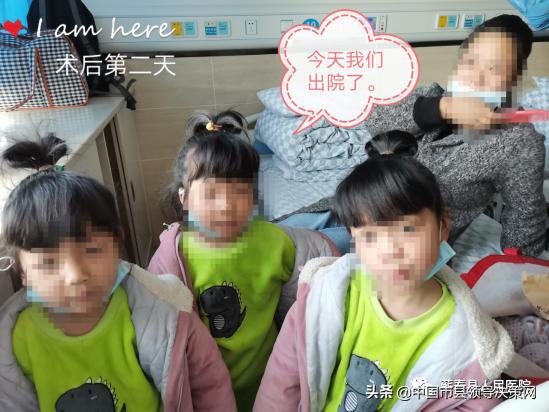 湖北蕲春县医院为3胞胎女孩实施小儿疝气微创手术