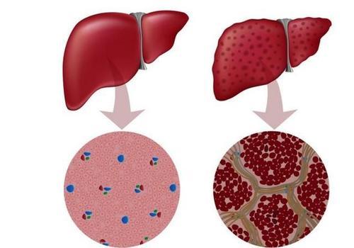 肝硬化晚期会有什么症状?