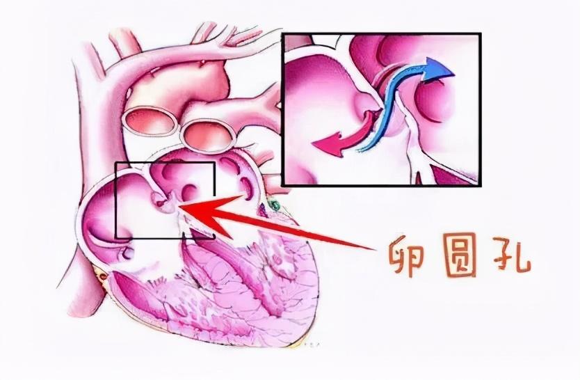 """""""多个心眼""""倒霉了!57岁大妈肾、肺、脑血管堵塞,居然是""""心眼""""出问题了?"""