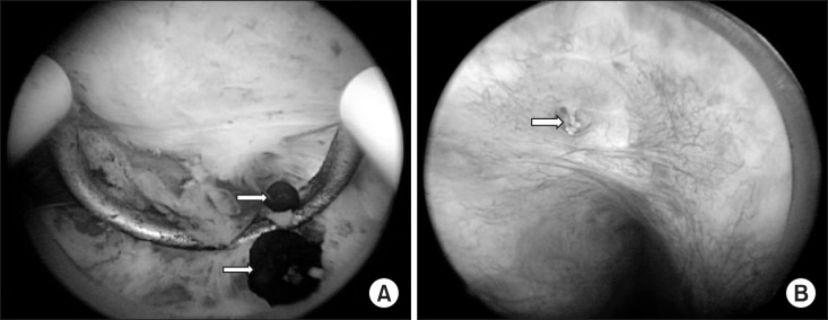 前列腺结石怎么检查出来的?你想知道的这里告诉你