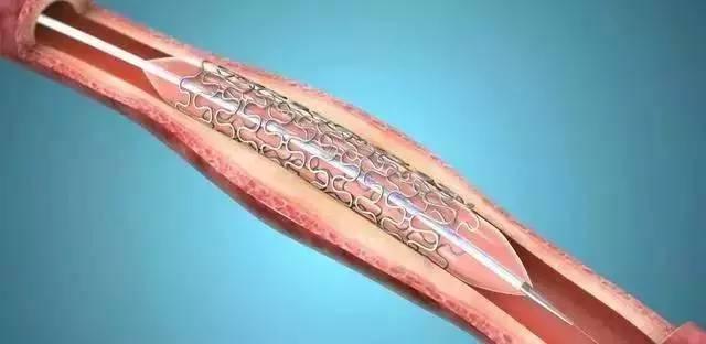 为什么冠脉支架植入术后还有胸闷、胸痛症状?