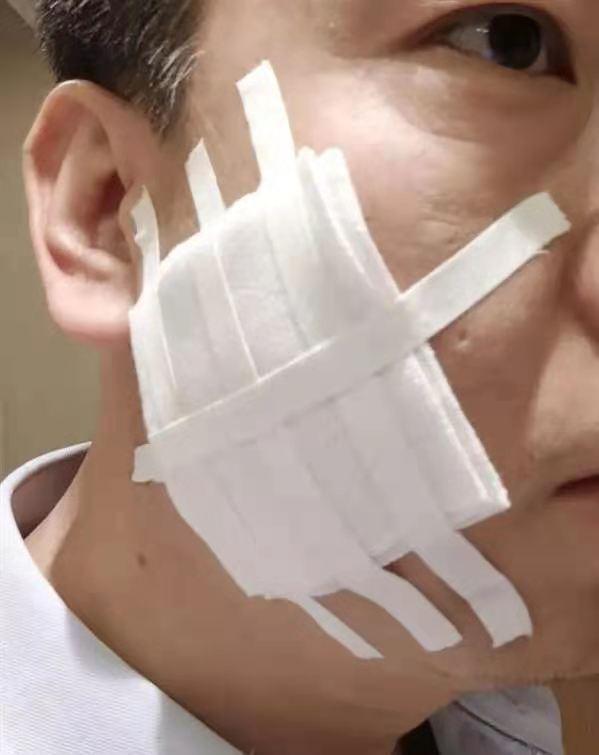 用烟头烫脸的陕西高管被辞退?受伤员工投诉:如果是假货,会扣一点钱