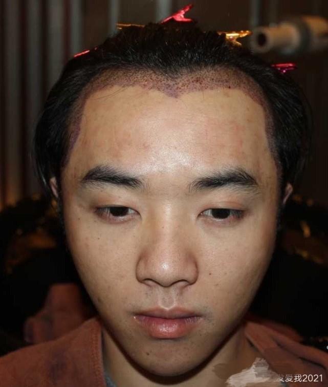 华晨宇方称照片是治疗皮肤,工作室呼吁勿传谣,张碧晨否认是小三