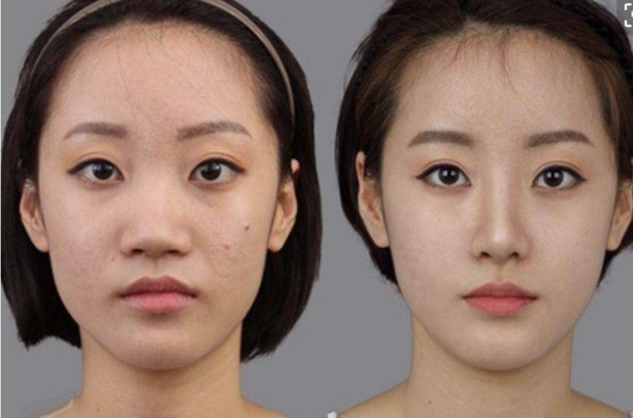 """直男眼中的4个""""丑鼻型"""",女生一个都不要占,严重拉低颜值"""