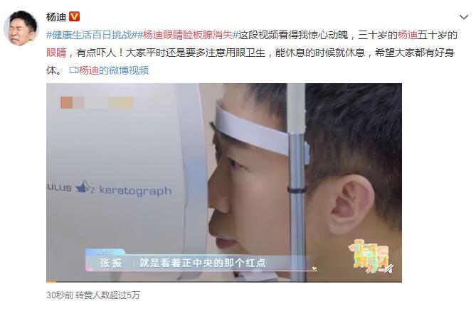 30岁的人50岁的眼睛!杨迪被查出眼睛睑板腺消失
