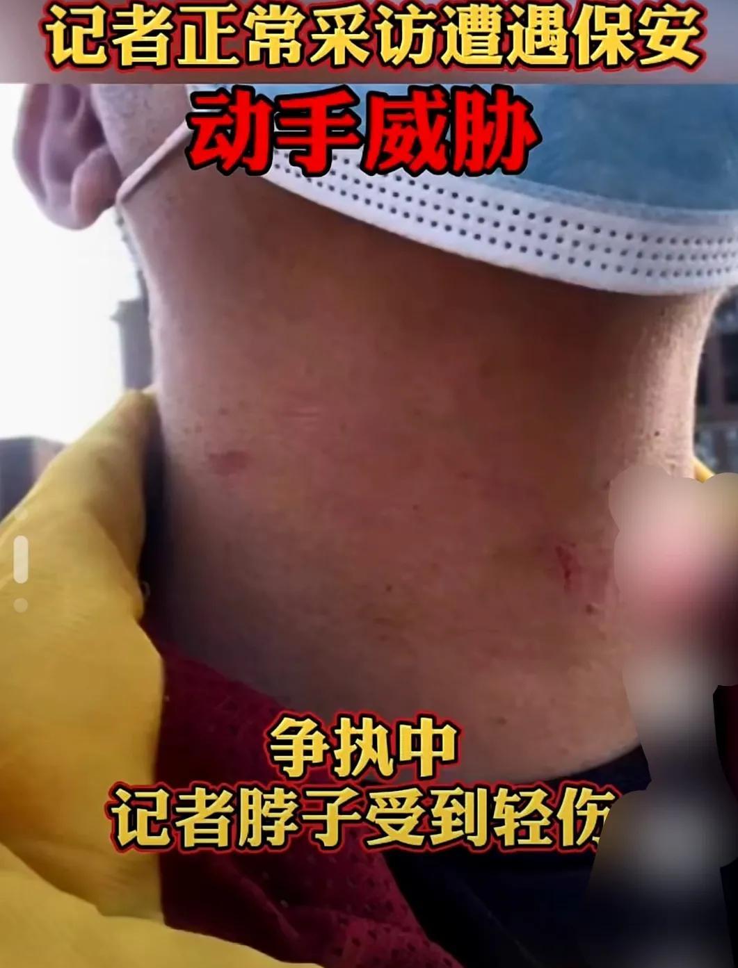 深圳一英式教育国际学校保安殴打威胁记者