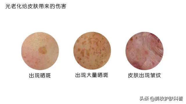 三月不防晒,五月斑上来,如何预防和治疗日晒斑 皮肤保养 第4张