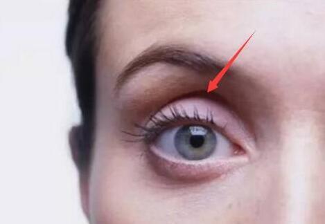 为什么你的眼窝凹陷?眼窝凹陷是有原因的