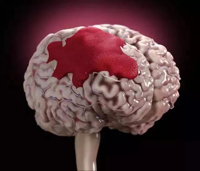 高血压患者吃阿司匹林可以远离中风吗?医生:部分人可能适得其反