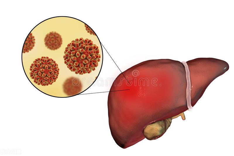 肝臟的症狀表現多種多樣,甲乙丙丁四類肝炎,症狀都有不同