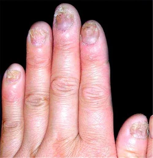 为什么得灰指甲?得了灰指甲怎么治?听医生说