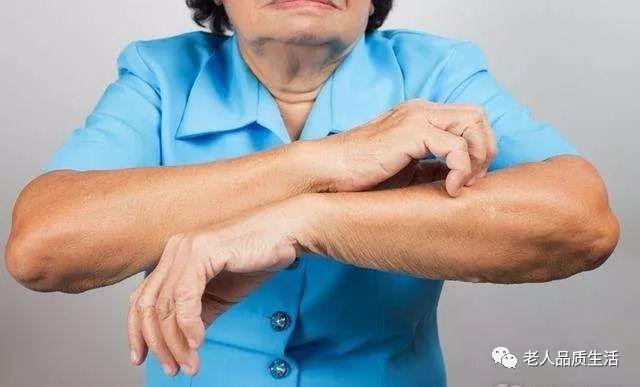 不要满足于衣食住行,老人皮肤也不能忽视,看看生活中怎么去保养 皮肤保养 第3张