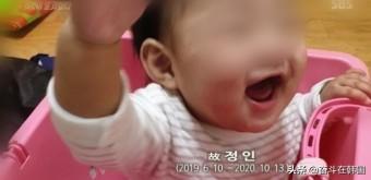 内脏破裂·腹部积血·全身骨折,韩16个月幼童被养父母虐待而亡