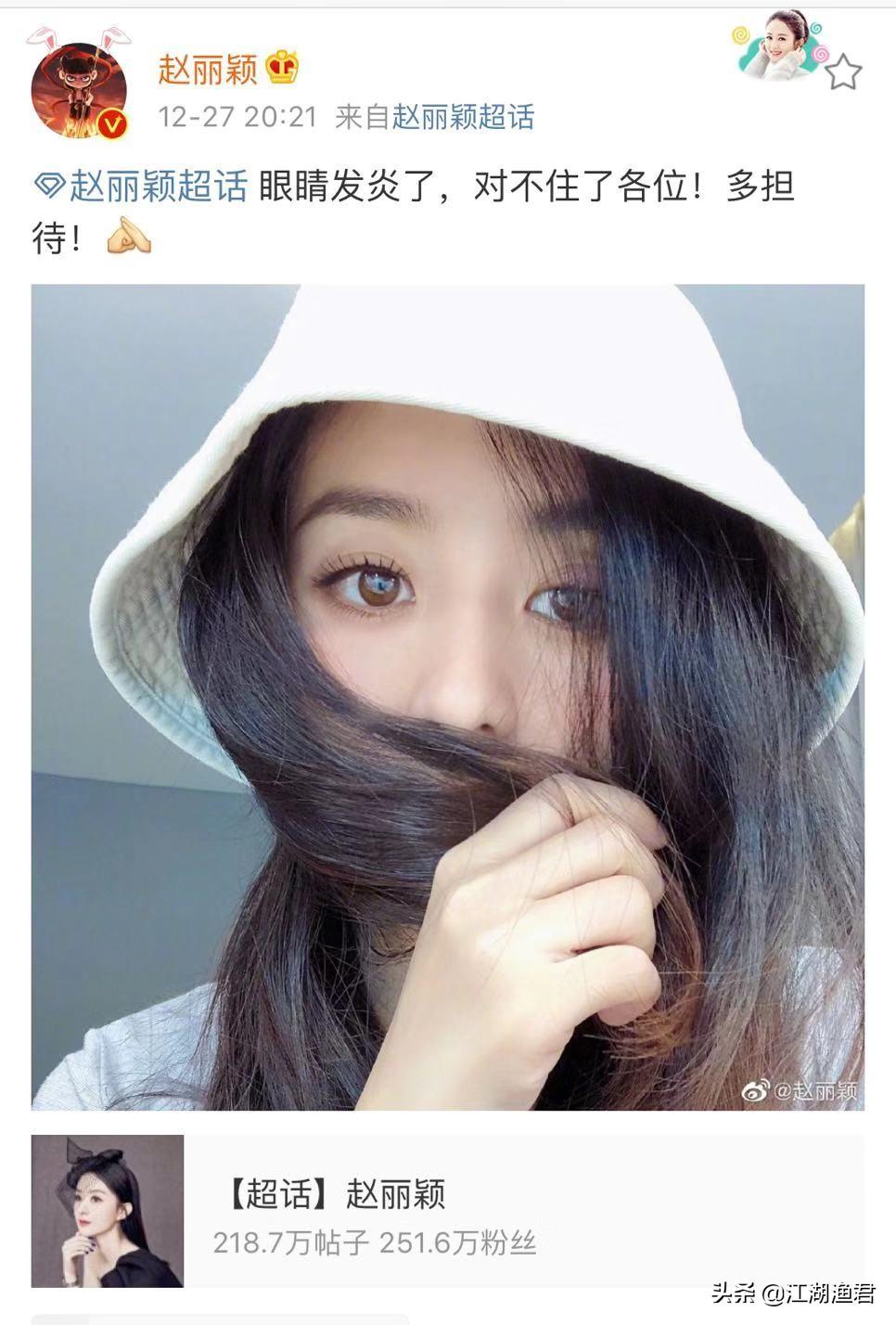 赵丽颖眼睛红肿发炎,微博罕见空降三超话留言:开启了宠粉模式