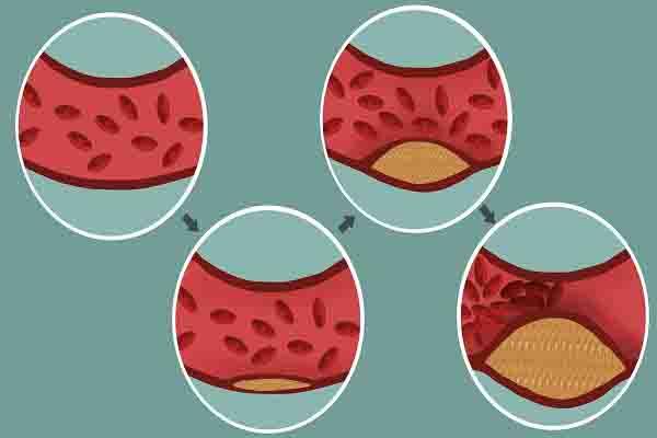 几毛钱一片的叶酸片,适当补充,能给身体带来什么好处?