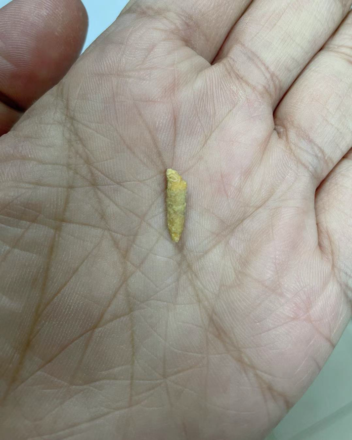 我从自己舌头下拔出了一块石头,足足有2厘米长
