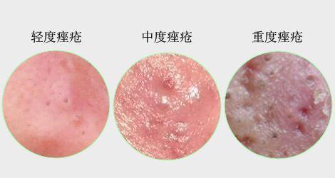 痤疮治不好,全因没有对症!痤疮分5类,治疗前先辨别你是哪种?