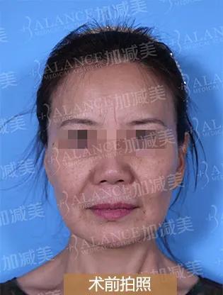 案例分享:面部提升术后一个月效果怎么样?
