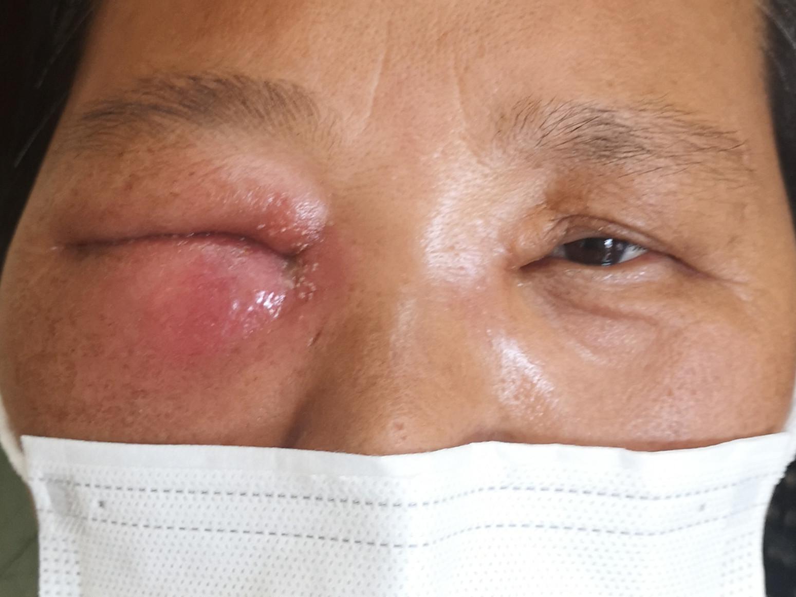 大妈眼肿如被蜜蜂蛰 因害怕拒绝再次手术 医生耐心劝导终获救治