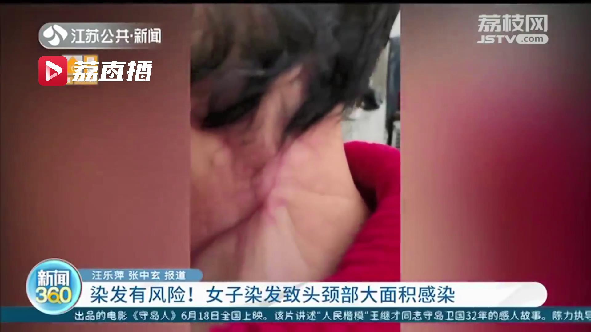 染发有风险!女子染发致头颈部大面积感染 医生建议使用产品前应局部试验