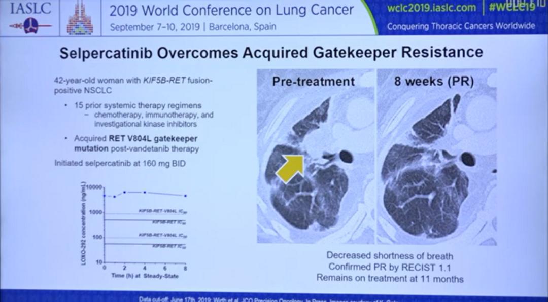 非小细胞肺癌患者迎来暖春!五款重磅新疗法即将上市