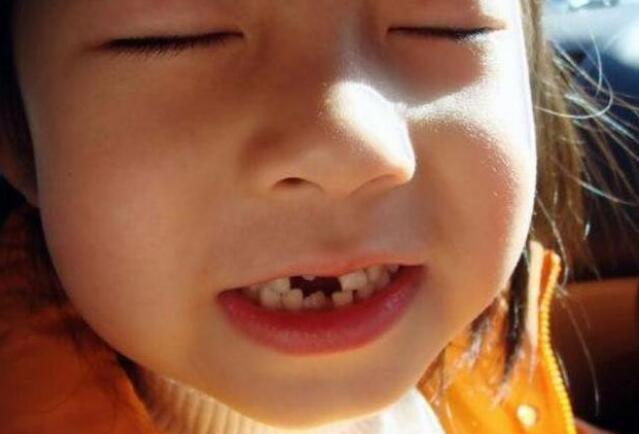 最全儿童换牙时间表:儿童换牙何时开始、何时结束?一图说清