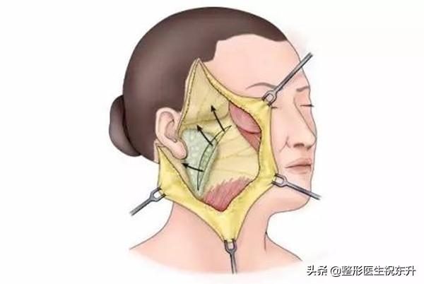 医生不会说的 | 做完拉皮手术,脸会感觉异常吗?