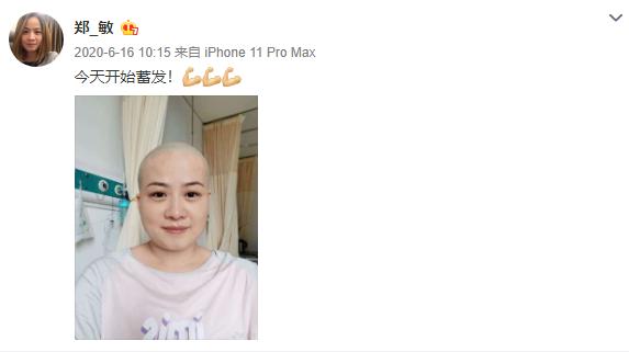 岳云鹏老婆术后9个月复查,发文感慨要活的尽兴,曾为治病剃光头