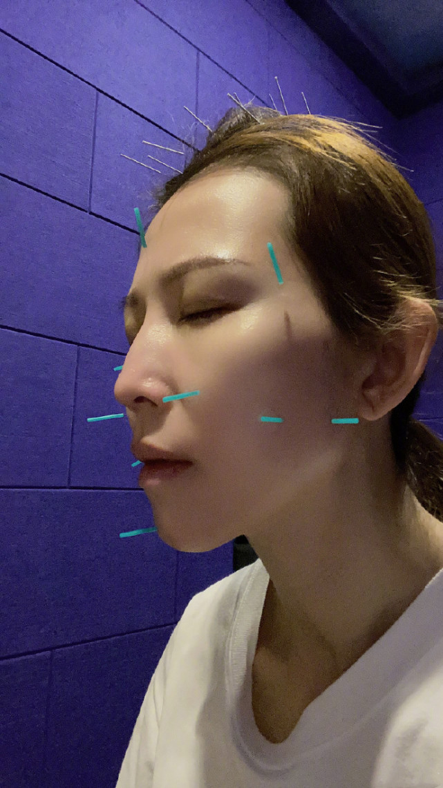 蔡少芬曬懟臉拍鎖骨搶鏡,在線詢問早起嘴腫原因,被侃:張晉親的