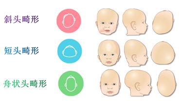 婴幼儿头颅畸形