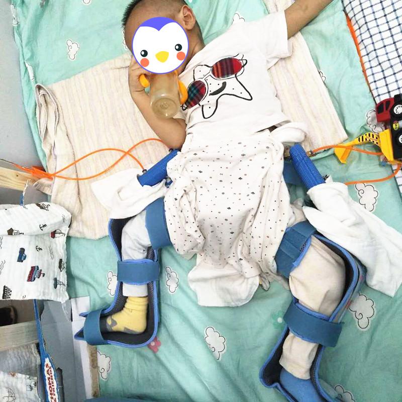 坚持就是胜利!湖南髋关节脱位男宝保髋矫正21个月后健步如飞