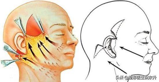 """祝医生整理:对比各个""""面部提升手术"""",做之前先看看"""