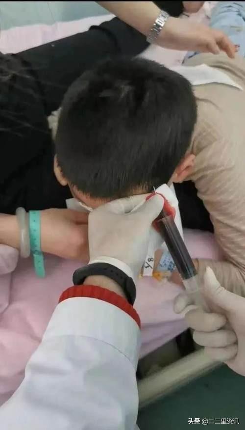 河南一男孩被体罚致头皮骨分离,警方通报:伤情为轻伤,教师被刑拘