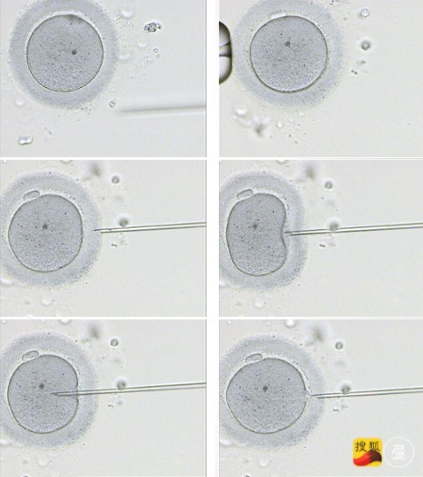 被遗弃的胚胎:试管婴儿背后,那些被冰封的生命